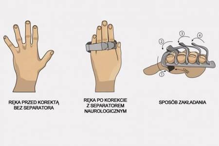 Separator neurologiczno-reumatologiczny palców dłoni
